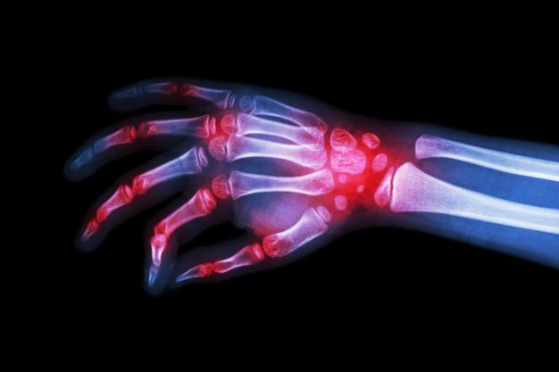chirurgia ręki